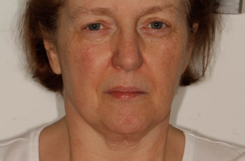 Lesley All on Six Dental Implants Before