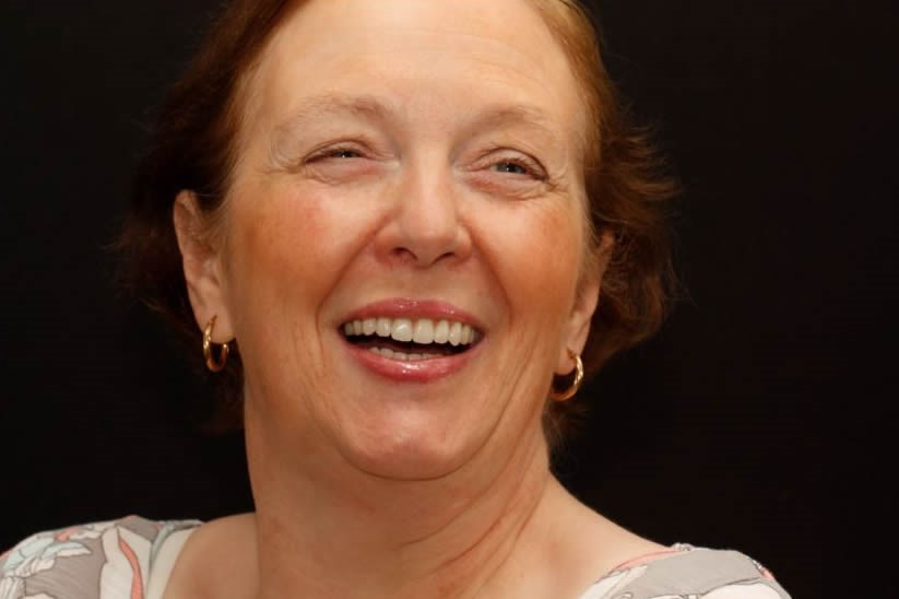 Lesley All on Six Dental Implants After