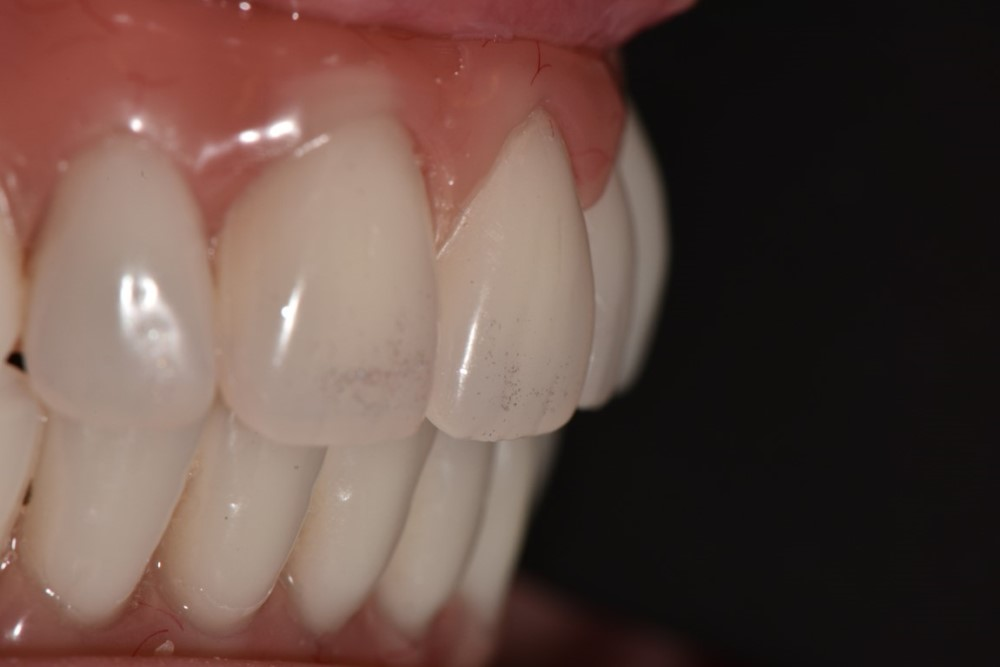 Janet All on Four Dental Implants After