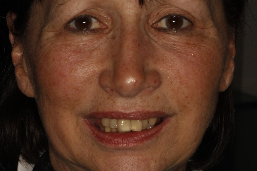 Janet All on Four Dental Implants Before