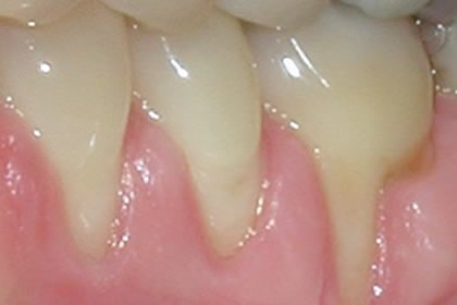 Gingival Grafting Example Before