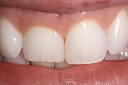 Crown Lengthening Example Before